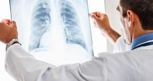 bolesti-pluća