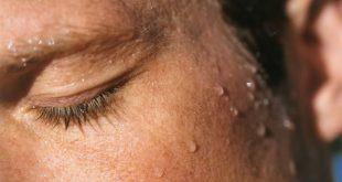 znojenje-2