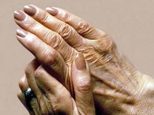 reumatoidni-artritis1